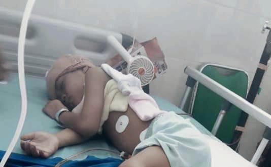 Arka Nanta Valendro yang harus operasi di kepala dirawat di RS Ponorogo. (Isa/PWMU.CO)